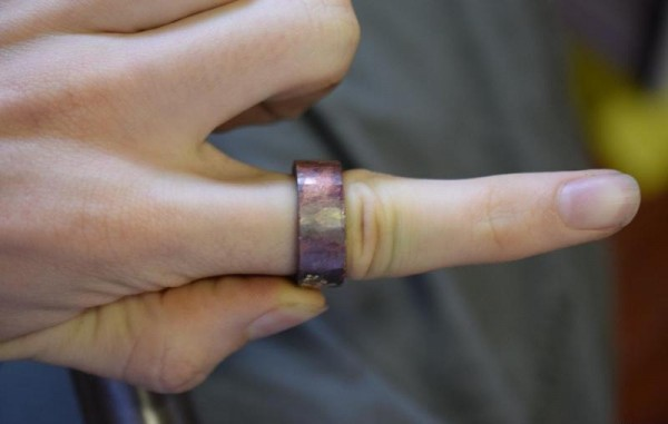 Кольцо застряло на пальце